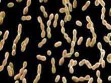 中间型链球菌感染 链球菌感染怎幺治疗