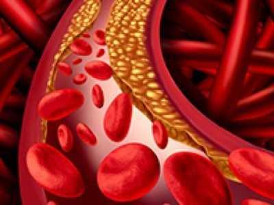 怎样才能把血管壁上的垃圾清除或减轻 血管内膜怎样保护